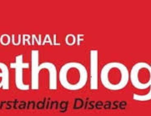Cripto favors chondrocyte hypertrophy via TGF-β SMAD1/5 signaling during development of osteoarthritis